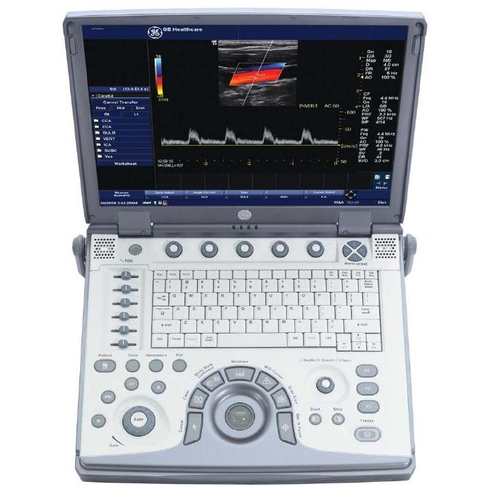 Ультразвуковой (УЗИ) сканер LOGIQ E (GE Healthcare)