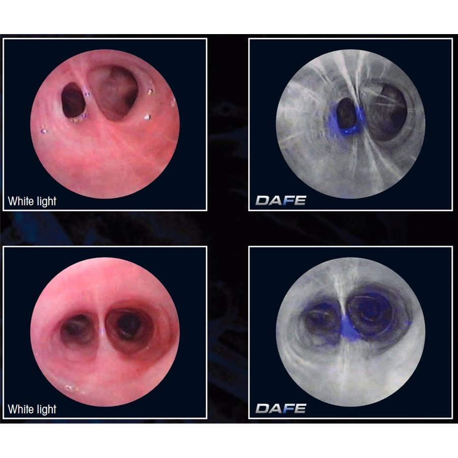 Автофлюоресцентная диагностика в бронхоскопии DAFE (Richard Wolf)