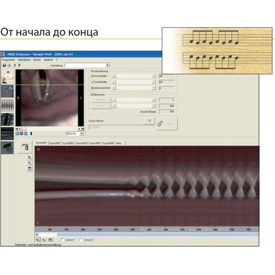 Диагностическая система для фониатрии HreS ENDOCAM 5562 (Richard Wolf)