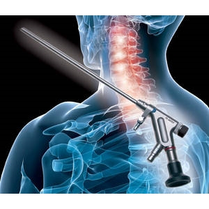 Система VERTEBRIS для шейного отдела: шейный эндоскопический инструментарий (Richard Wolf)