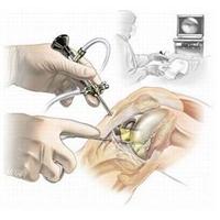 Артроскопия коленного сустава (Richard Wolf)