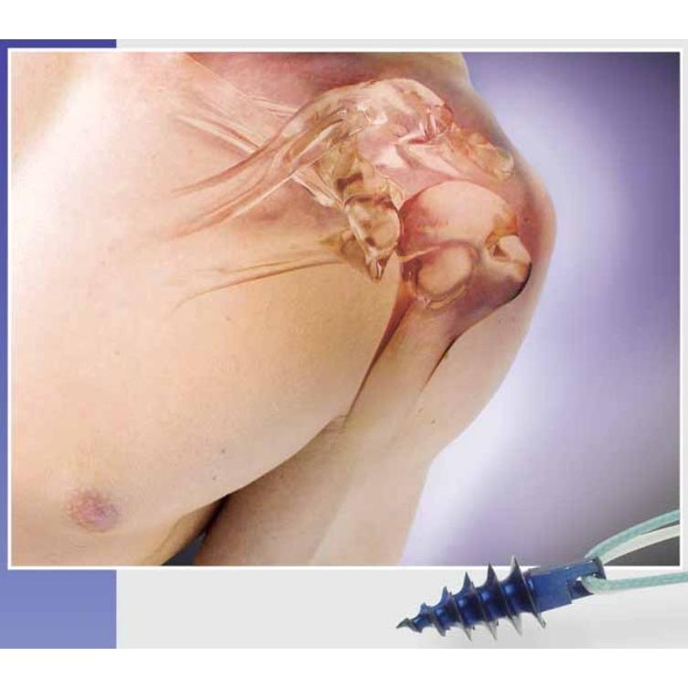 Артроскопия плечевого и локтевого суставов (Richard Wolf)