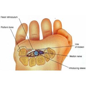 Артроскопия малых суставов (Richard Wolf)