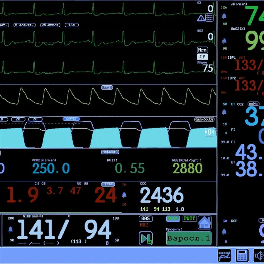 Монитор анестезиологический МПР 6-03 дисплей 15'' Комплектация А4 (Triton)