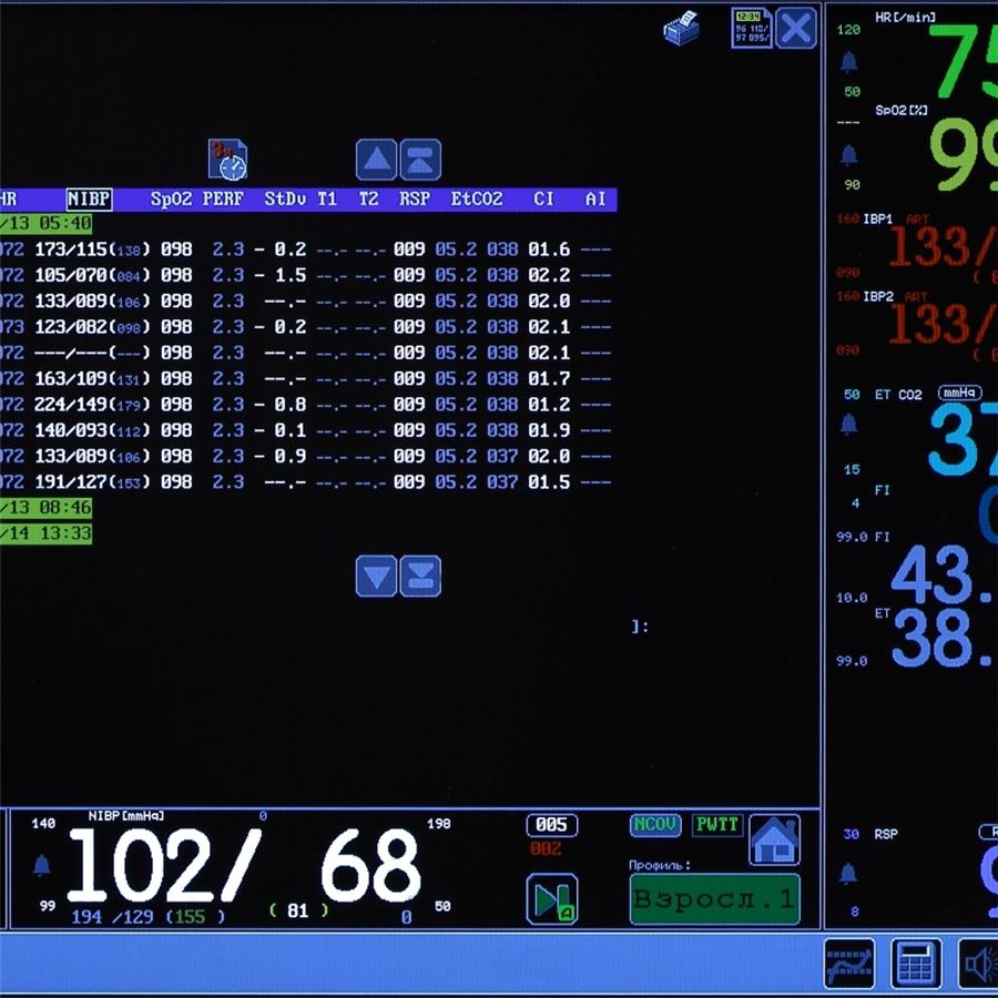 Монитор анестезиологический МПР 6-03 дисплей 15'' Комплектация А1 (Triton)