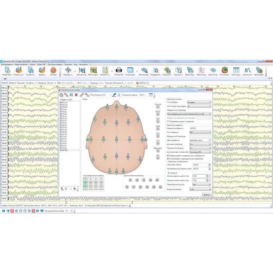 Электроэнцефалограф Нейрон-Спектр-3 (Нейрософт)