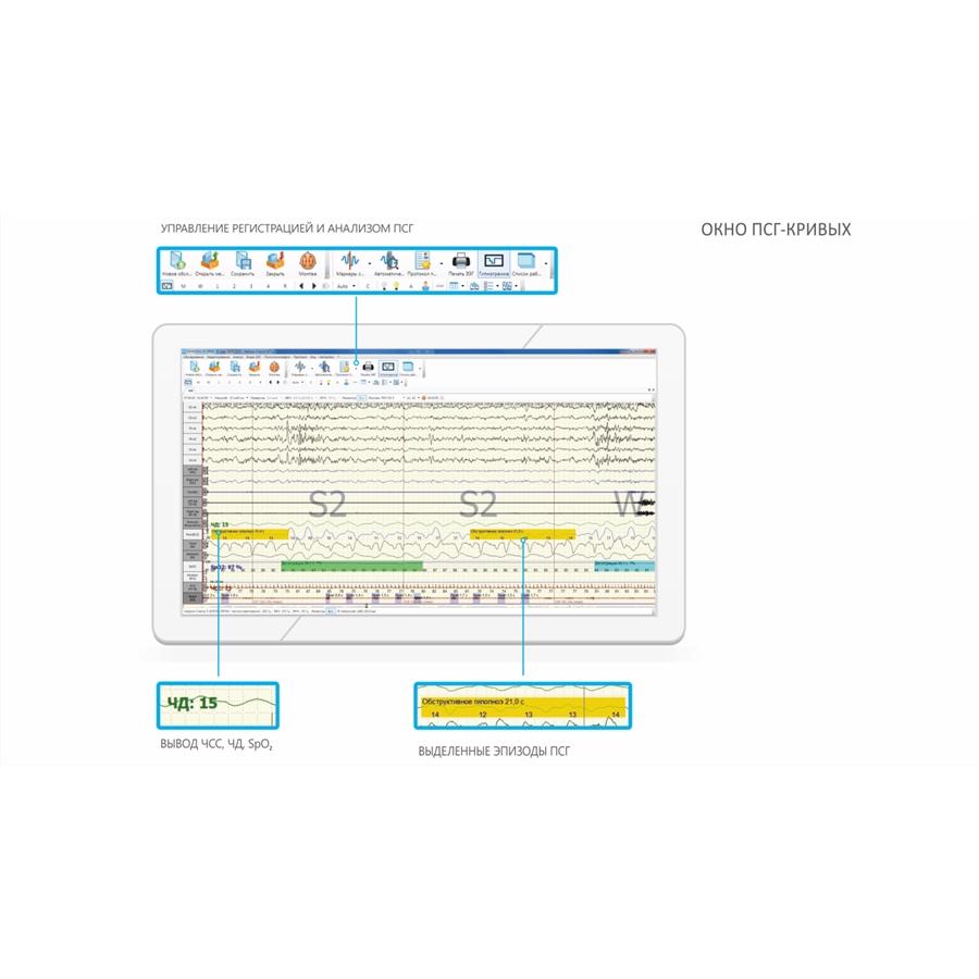 Полисомнограф Нейрон-Спектр-4/ПСГ (Нейрософт)