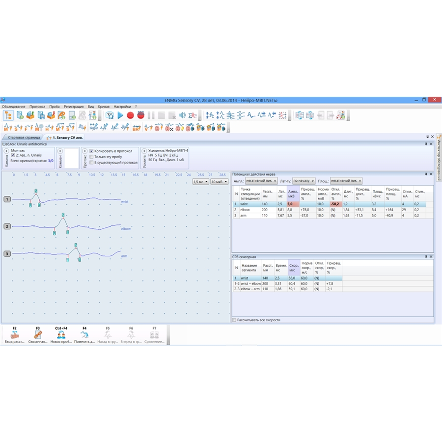 Электронейромиограф Нейро-МВП-8 (Нейрософт)